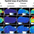تصاویربرداری از پرفیوژن خون با وضوح بالا به کمک دوربین و پالساکسیمتر